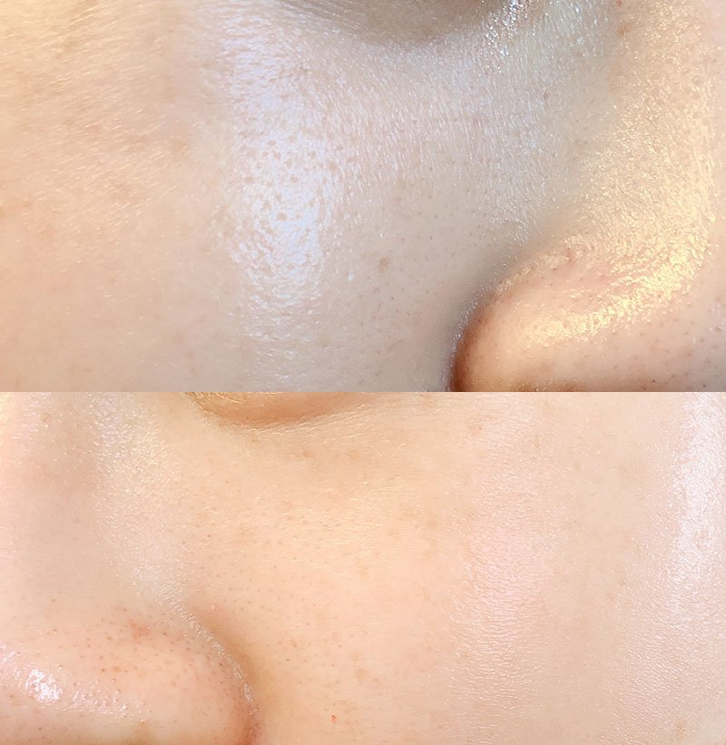 How I minimized my pores with the Paula's Choice Niacinamide 20% Treatment